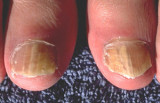 Schimmel nagel behandeling